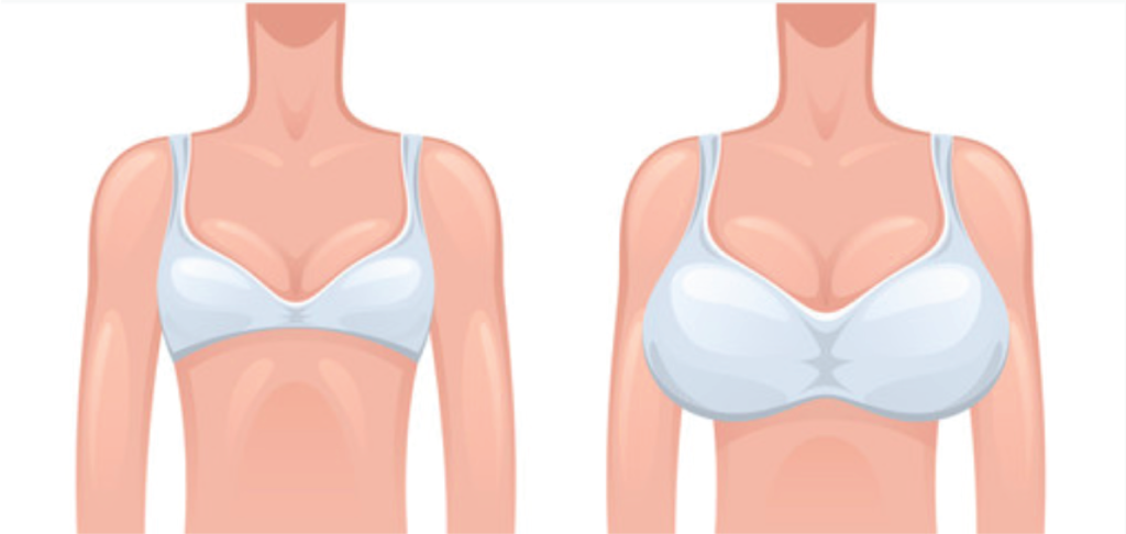 Bra sister sizing example